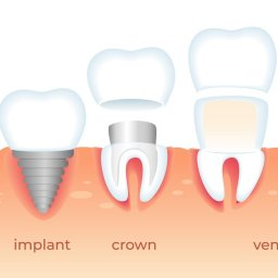 implant veneers crowns