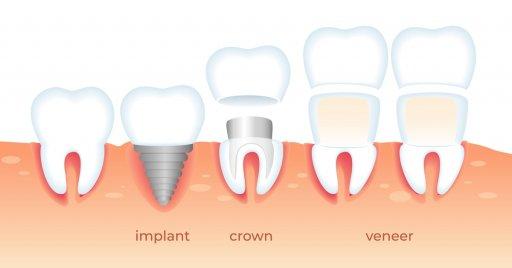 implant veneers crowns